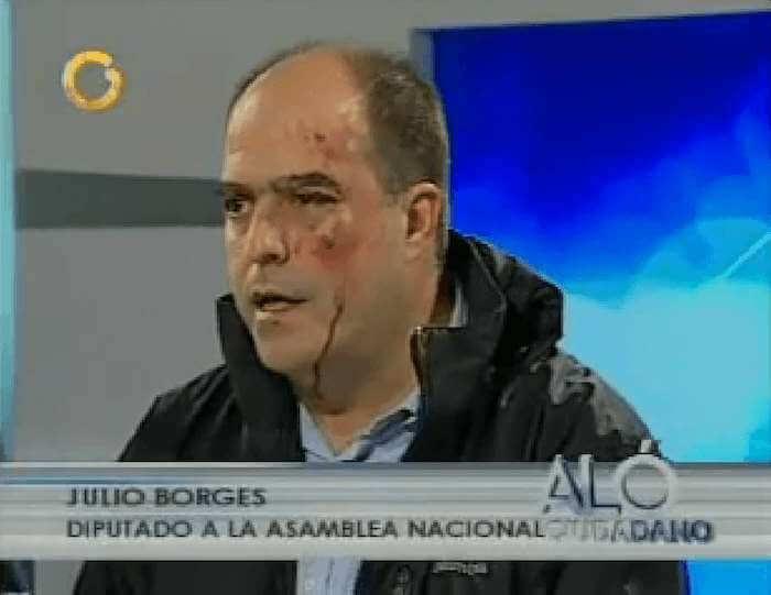 El rostro lesionado de Julio Borges